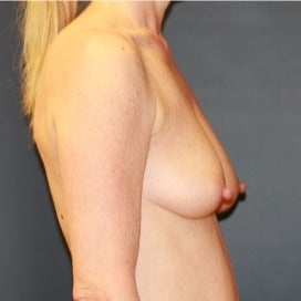 Breast Augmentation with Tear Drop Implants before 1891403