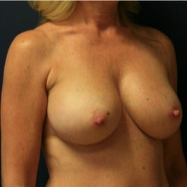 Breast Augmentation with Tear Drop Implants 1891403