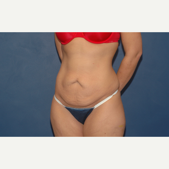 32 year old woman treated with Tummy Tuck before 3283195