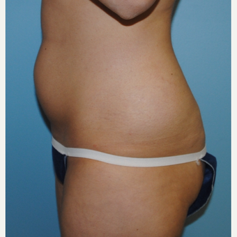 26 year old who had liposuction of her abdomen and flanks before 3142652