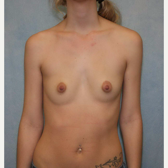 18-24 year old woman treated with Breast Augmentation before 3487031