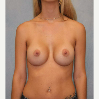 18-24 year old woman treated with Breast Augmentation after 3487031