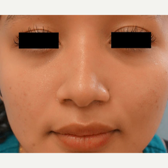 17 or under year old woman treated with Rhinoplasty after 3768649