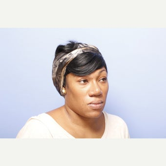 Woman treated with African American Rhinoplasty after 2124147