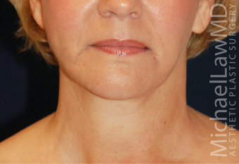 Neck Lift after 931646