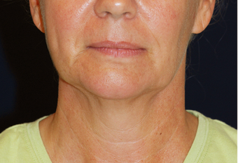 Neck Lift before 931646