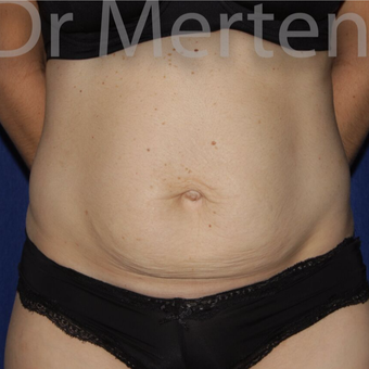 Tummy Tuck before 3599409