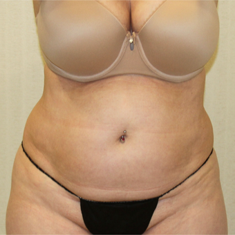 55-64 Year Old Woman Treated with Tummy Tuck to treat Excess Skin and Fat in Abdominal Region before 2988685