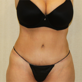 55-64 Year Old Woman Treated with Tummy Tuck to treat Excess Skin and Fat in Abdominal Region after 2988685