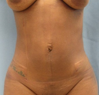 25-34 year old woman treated with Liposuction after 3725060