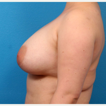 18-24 year old woman treated with Breast Augmentation after 3371120