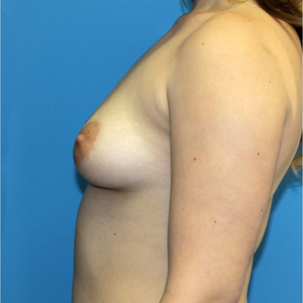 18-24 year old woman treated with Breast Augmentation before 3371120