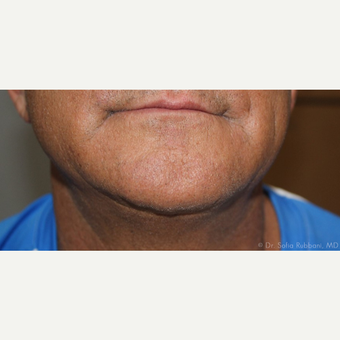 55-64 year old man treated with Kybella after 2787503