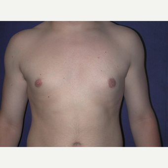 25-34 year old man treated with Male Breast Reduction after 3727286