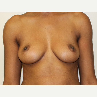 Breast Augmentation before 3418035