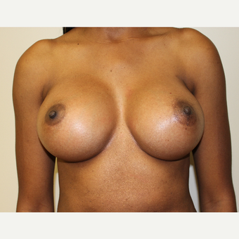 Breast Augmentation after 3418035