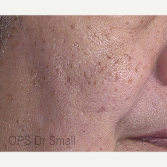 55-64 year old woman treated with Photofacial before 3305873