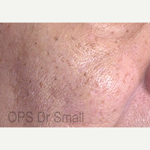 55-64 year old woman treated with Photofacial after 3305873