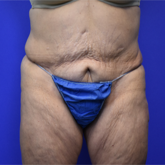 55-64 year old woman treated with Tummy Tuck after 3259042