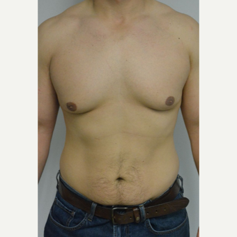 25-34 year old man treated with Male Breast Reduction before 3070560