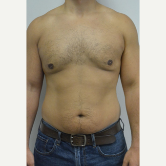 25-34 year old man treated with Male Breast Reduction after 3070560