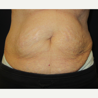65-74 year old woman treated with CoolSculpting before 3399121