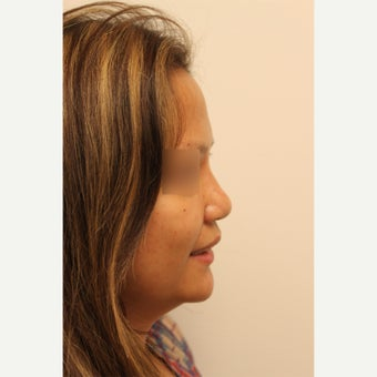 25-34 year old woman who underwent Asian Rhinoplasty surgery and alar base reduction