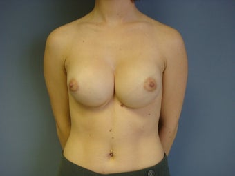 25yo Breast Augmentation Revision before 989839