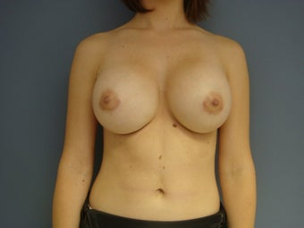 25yo Breast Augmentation Revision after 989839