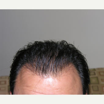25-34 year old man treated with Hair Loss Treatment after 3506310