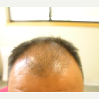 25-34 year old man treated with Hair Loss Treatment before 3506310