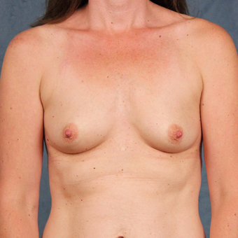42 year old female with natural breast augmentation with silicone gel implants before 3147894