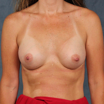 42 year old female with natural breast augmentation with silicone gel implants after 3147894