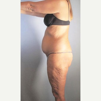45-54 year old woman treated with Liposuction before 2661626
