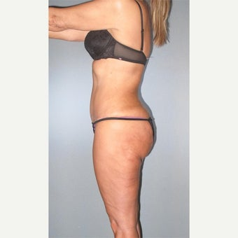45-54 year old woman treated with Liposuction after 2661626