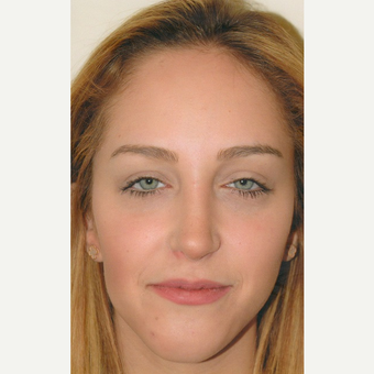18-24 year old woman treated with Rhinoplasty after 3465219