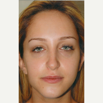 18-24 year old woman treated with Rhinoplasty before 3465219