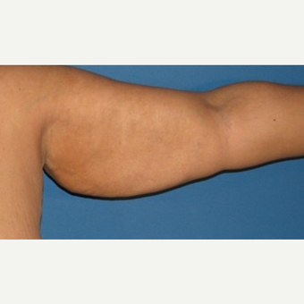 35-44 year old woman treated with Arm Lift before 2979268