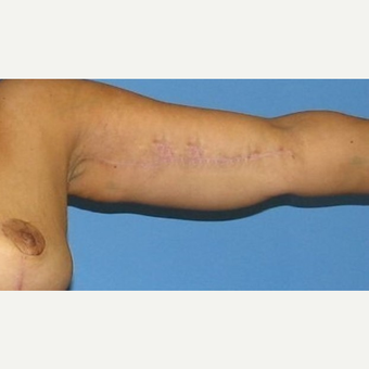 35-44 year old woman treated with Arm Lift after 2979268