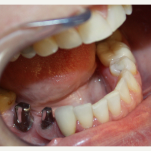 45-54 year old woman treated with Dental Implants before 3126648