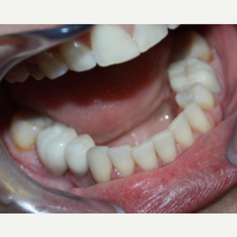 45-54 year old woman treated with Dental Implants after 3126648