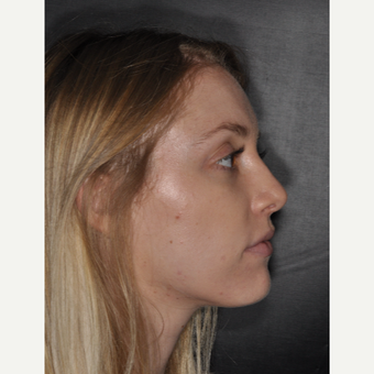 18-24 year old woman treated with Rhinoplasty 1 year post-op after 3499769