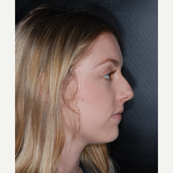 18-24 year old woman treated with Rhinoplasty 1 year post-op before 3499769