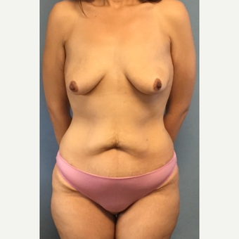 33 year old woman treated with abdominoplasty, breast lift with implants before 3088704