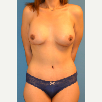 33 year old woman treated with abdominoplasty, breast lift with implants after 3088704