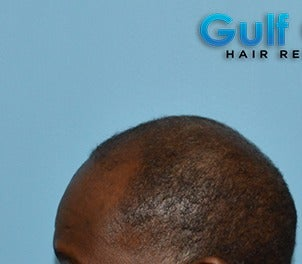 45-54 year old man treated with FUE Hair Transplant before 3624455