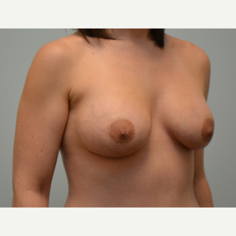 Breast augmentation with 245cc Natrelle Gel Anatomically-Shaped implants after 2217797