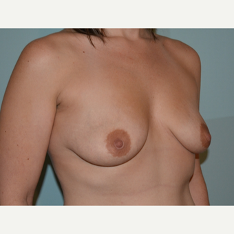 Breast augmentation with 245cc Natrelle Gel Anatomically-Shaped implants before 2217797