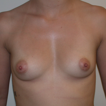 Silicone Cohesive Gel Implants through Armpit Incision before 3839921