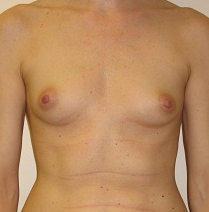 Breast Reconstruction before 1216632